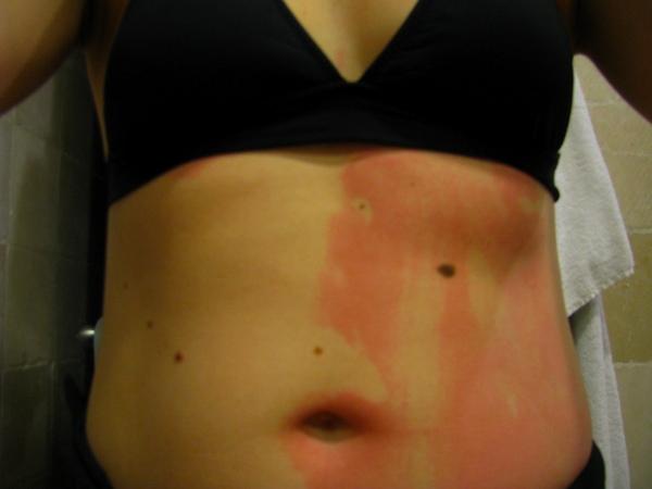sunscreen fail