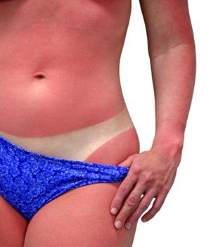 Sunburn victim