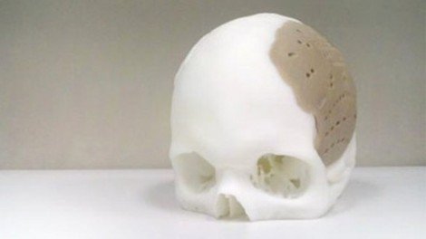 Thanks for my new 3D printed skull