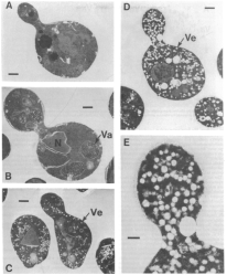 Retro Science: A figure from Schekman's breakthrough 1979 paper, showing how vessicles—the sacs used to transport proteins in and out of cells—accumulate in mutant yeast cells. A and B show normal cells, while C, D, and E show mutations that markedly increase the number of vessicles (Ve) in the cell.